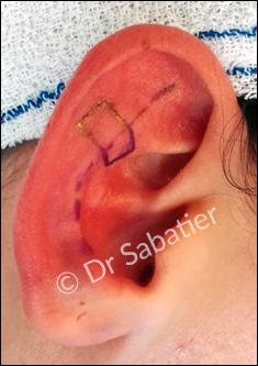 Repérage avant la mise en place de l'implant earfold