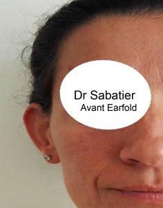 Avant earfold
