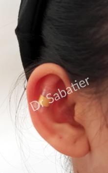 Préimplant earfold positionné permettant la prévisualisation du résultat en consultation