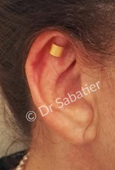 Visualisation du résultat grace au préimplant earfold
