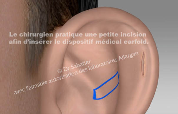 Après anesthésie locale ,préparation du site d'implantation de l'implant earfold.