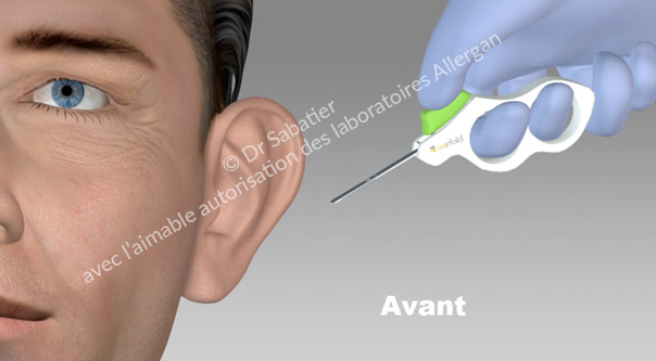Oreille decollée avant la mise en place d'implant earfold.