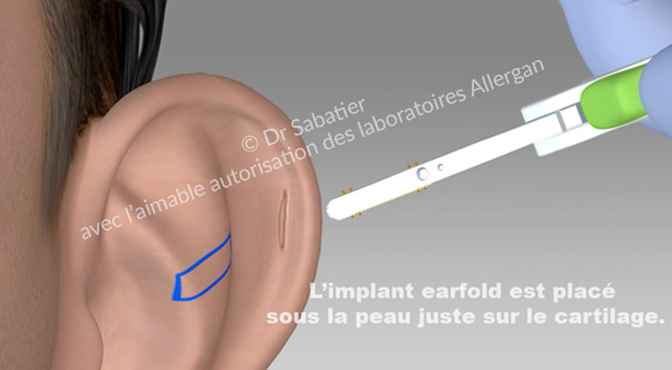 Mise en place de l'implant earfold à l'aide du dispositif médical.